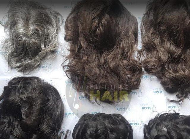 Open day a Roma per gli impianti capillari, presentazione di nuove tecniche di Future Hair